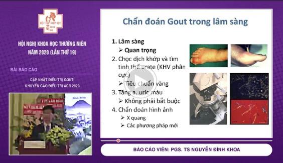 [Video] Cập nhật điều trị gout: Khuyến cáo điều trị ACR 2020 – PGS. TS Nguyễn Đình Khoa